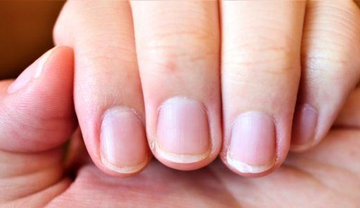 ジェルネイルを続けると自爪が薄くなる?痛む原因と対処法